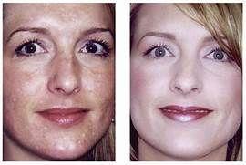 lighting facial